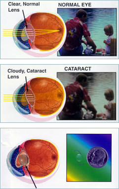 p-cataract