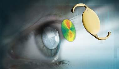 Cataract / Premium IOLs